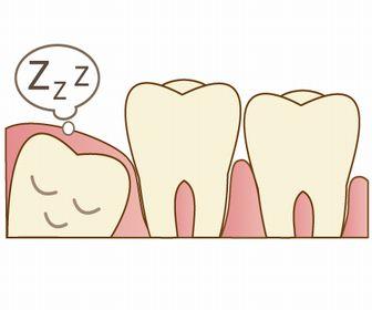 親知らず抜歯体験談