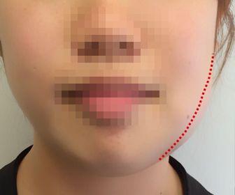 親知らず抜歯後の腫れ