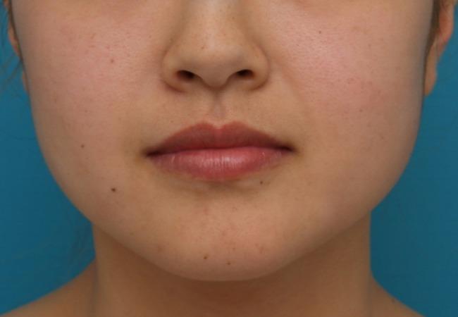 親知らず抜歯で小顔になる人の特徴